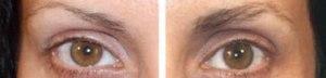 antes-e-depois-minoxidil-sobrancelha